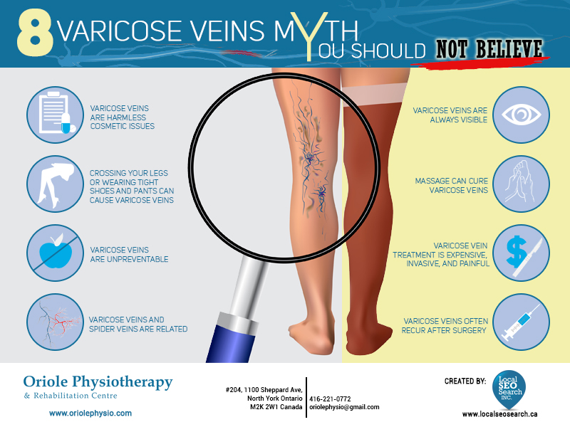 Oriole Physiotherapy: 8 Varicose Veins Myth You Should Not Believe