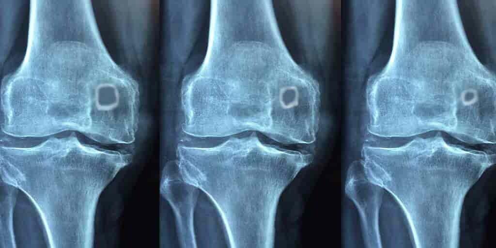 Un os du genou qui ne sert à rien fait son retour