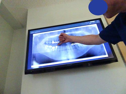 歯根治療のレントゲン