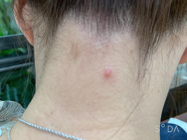 【日本medi-acne克鬪娜調理凝乳】不含藥的痘痘乳霜