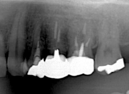 神経を抜いた歯