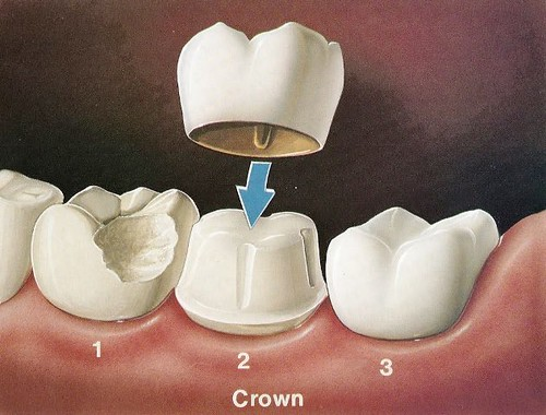 Dental Crowns Nolensville