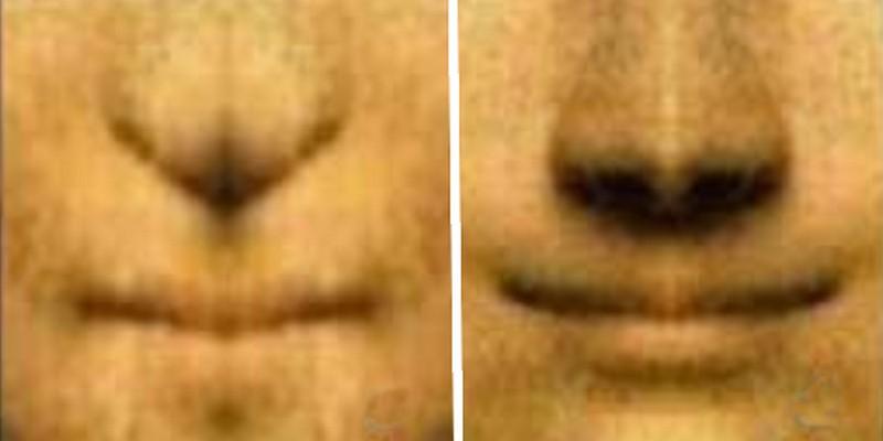 sourire-analyse-asymétrique