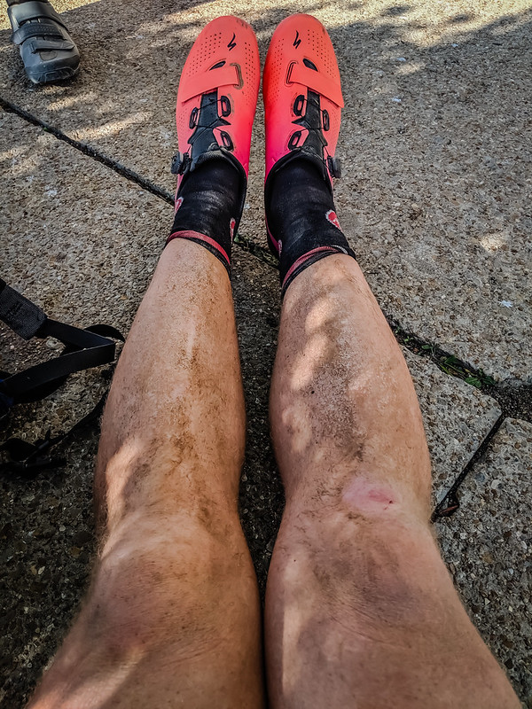 My beautiful legs after DK 100