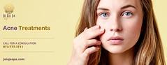 Acne Treatments Clifton NJ