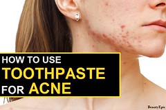 Does Toothpaste Help With Acne?