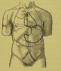 This image is taken from Page 199 of On disorders of assimilation, digestion, etc.