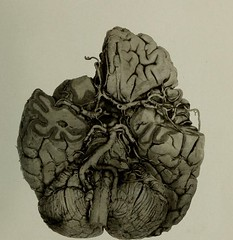 This image is taken from Illustrations of the gross morbid anatomy of the brain in the insane : A selection of seventy-five plates showing the pathological conditions found in post-mortem examinations of the brain in mental diseases