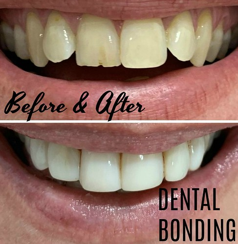 Dental Bonding before and after TEXT