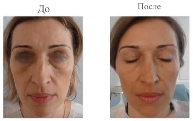 Как стареет женское лицо, и что с этим можно сделать? 12