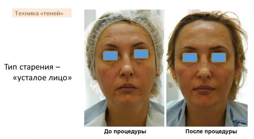 Как стареет женское лицо, и что с этим можно сделать? 7