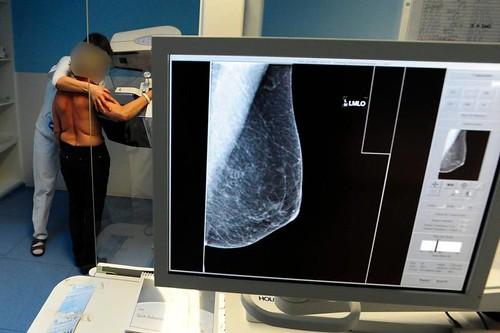 un reggiseno per prevenire tumore al seno