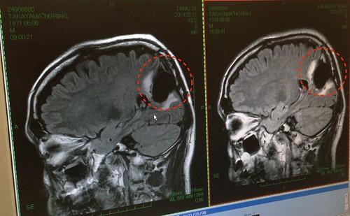 脳腫瘍摘出手術後の脳のMRI画像