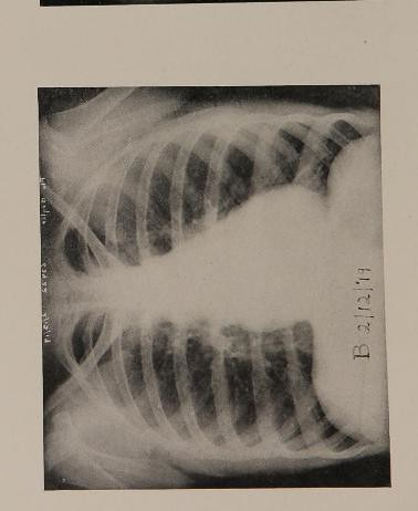 This image is taken from The correlation of x-ray findings and physical signs in the chest in uncomplicated epidemic influenza