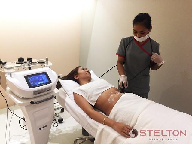 Stelton Dermascience S-Body Contouring
