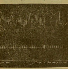 This image is taken from Page 9 of An address on the clinical measurement of diastolic blood pressure and cardiac strength : opening address of the Winter Session at the North-East London Post-Graduate College, October 27th, 1910