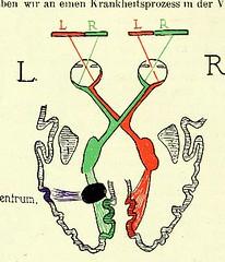 This image is taken from Page 50 of Gehirn und Auge : nach einem im Oktober 1913 vor dem Verein rheinisch-westfälischer Augenärtze in Düsseldorf abgehalten Fortbildungskurs / von Robert Bing