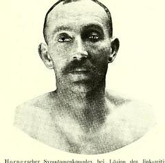 This image is taken from Page 13 of Gehirn und Auge : nach einem im Oktober 1913 vor dem Verein rheinisch-westfälischer Augenärtze in Düsseldorf abgehalten Fortbildungskurs / von Robert Bing