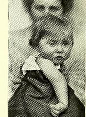 This image is taken from Page 12 of Gehirn und Auge : nach einem im Oktober 1913 vor dem Verein rheinisch-westfälischer Augenärtze in Düsseldorf abgehalten Fortbildungskurs / von Robert Bing