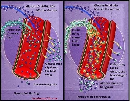 hien-tuong-de-khang-insulin