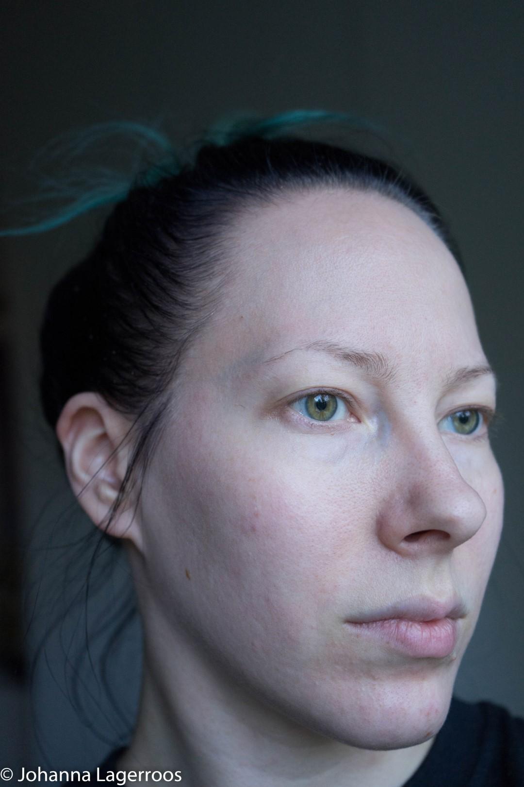 Skin week one