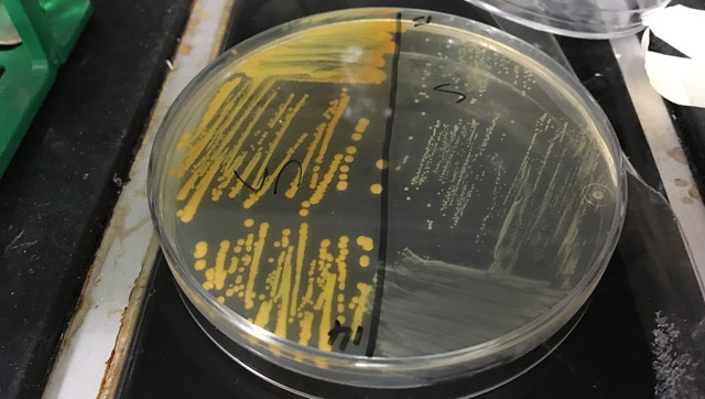 A petri dish of wild type and mutated Staphylococcus aureus.