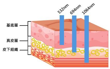 皮秒雷射除不掉的斑點靠紅寶石雷射!除斑不是用單一的雷射就能做治療!皮秒雷射加紅寶石雷射幫你消除斑點!