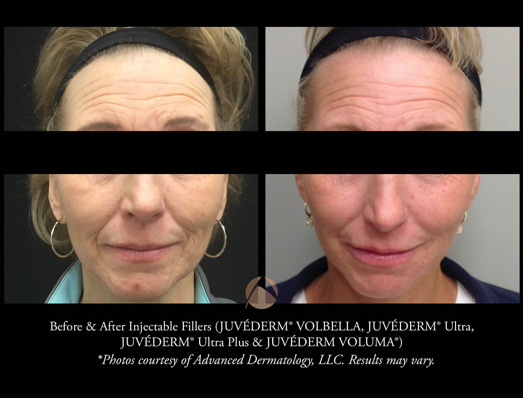 JUVÉDERM VOLBELLA® XC, for lip augmentation and filling in