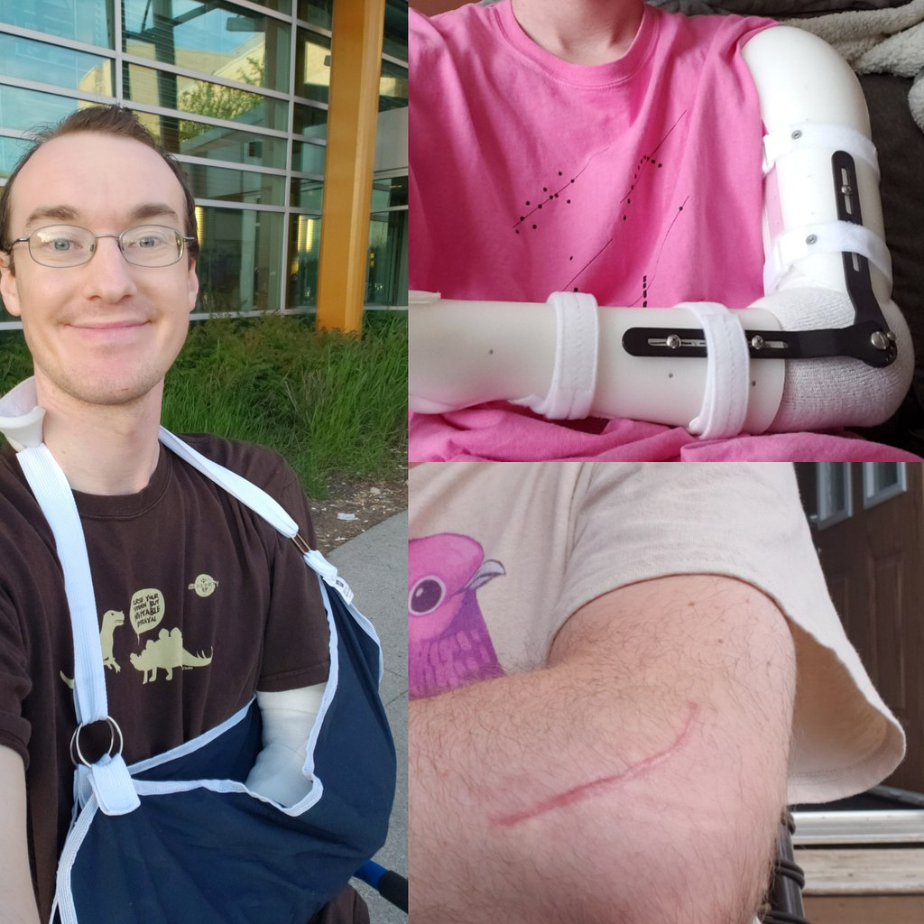 Three photos of me in a cast, brace, and just a bare scar on my elbow, respectively