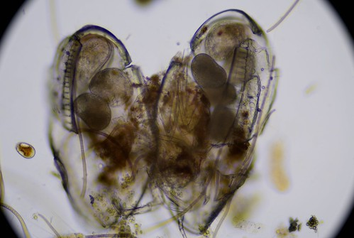 ostracod-with-maturing-eggs-ats-sample-8132019 (42) | by jason2459