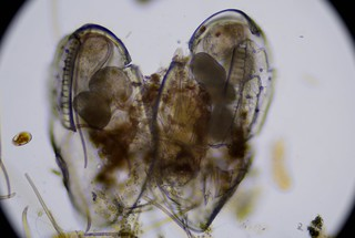 ostracod-with-maturing-eggs-ats-sample-8132019 (40) | by jason2459