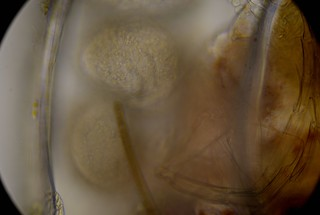 ostracod-with-maturing-eggs-ats-sample-8132019 (27) | by jason2459
