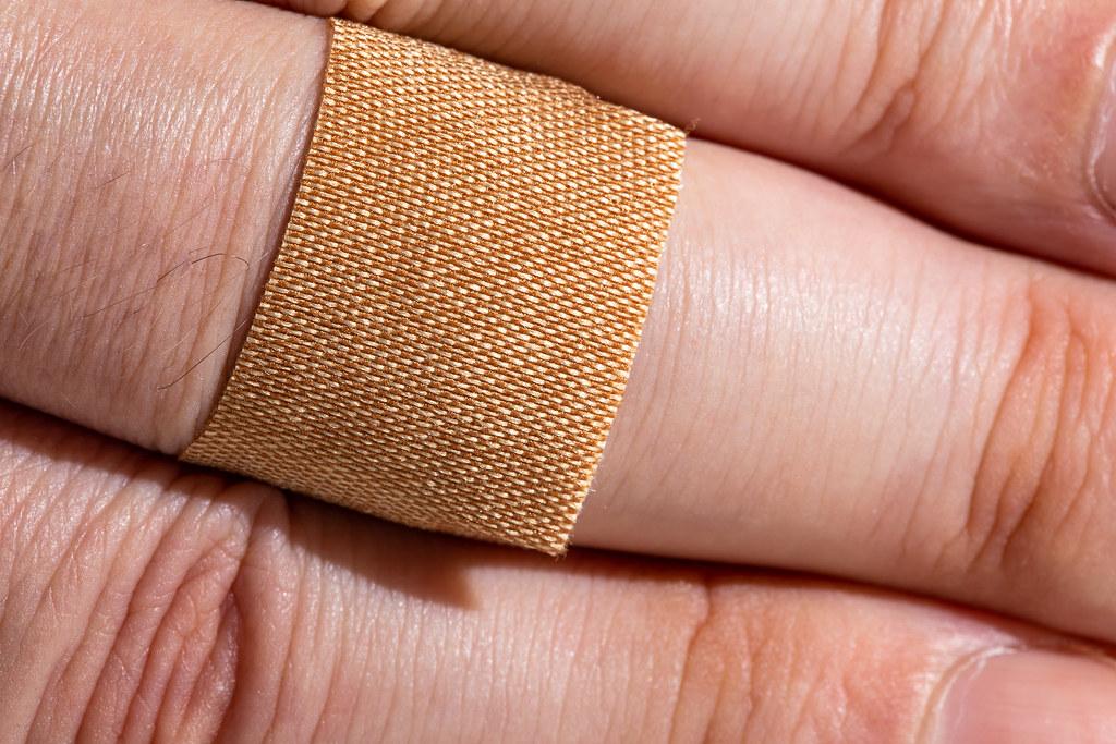 scraped knuckle