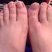 20180730 2309 - Carolyn's feet