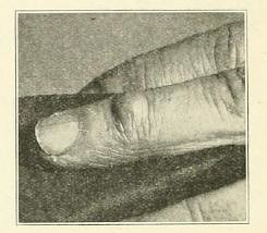 This image is taken from Page 562 of Archives of dermatology, 05