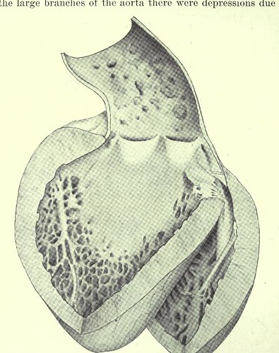 This image is taken from Arteriosclerosis and hypertension, with chapters on blood pressure