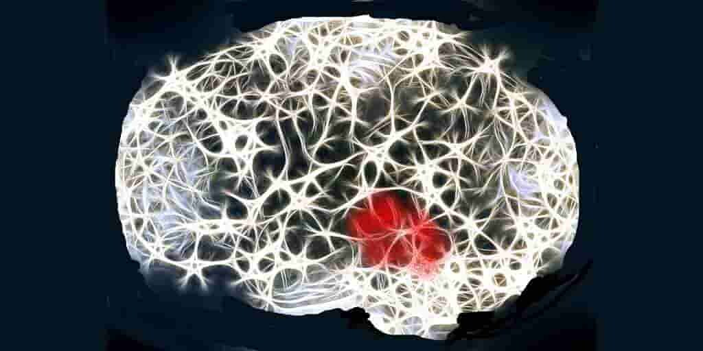 L'Alzheimer : TREM2 retarderait l'émergence de cette maladie