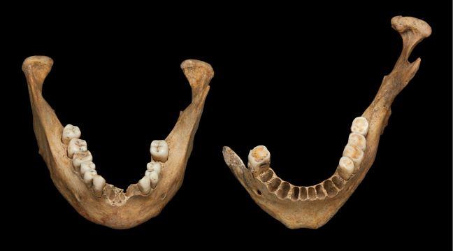 Male and female mandibulae