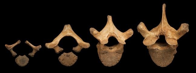 A series of developing vertebrae, demonstrating how fusion in these bones takes place over the course of development