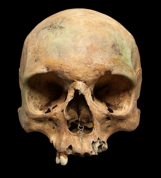 A female skull