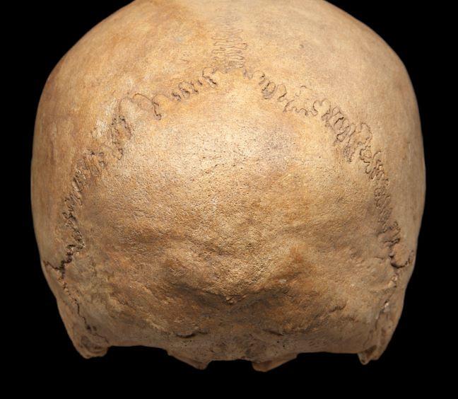 Back of a female skull