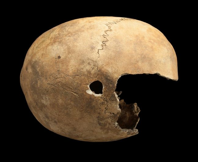 A skull with hole in the centre caused by post-mortem damage