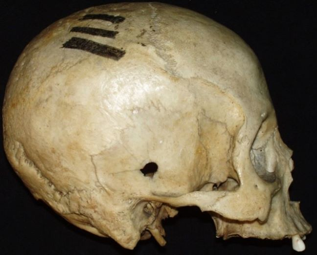 A skull showing an entrance wound caused by high-velocity projectile trauma