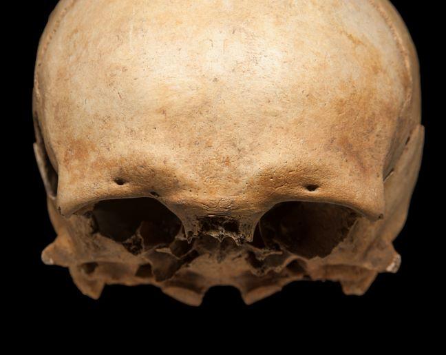 A male skull