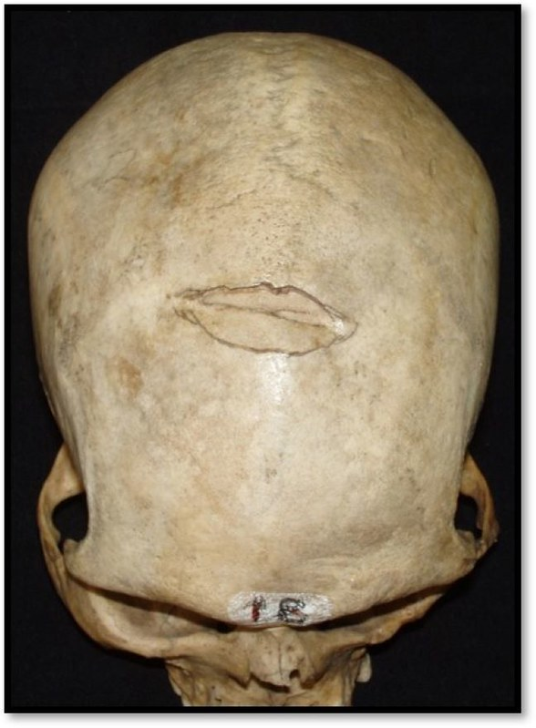 A skull displaying a peri-mortem injury to the cranial vault