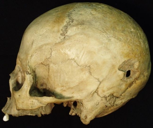 A skull showing an exit wound caused by high-velocity projectile trauma