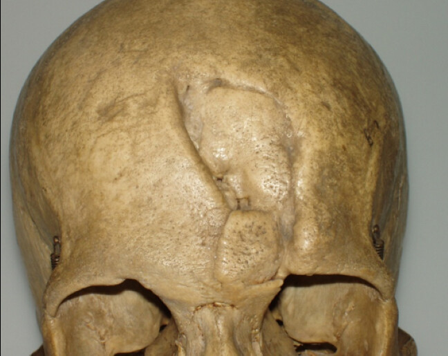 Skull with a well-healed injury to the forehead. The skull looks like it had been partially caved in it but the fracture edges have united and are rounded