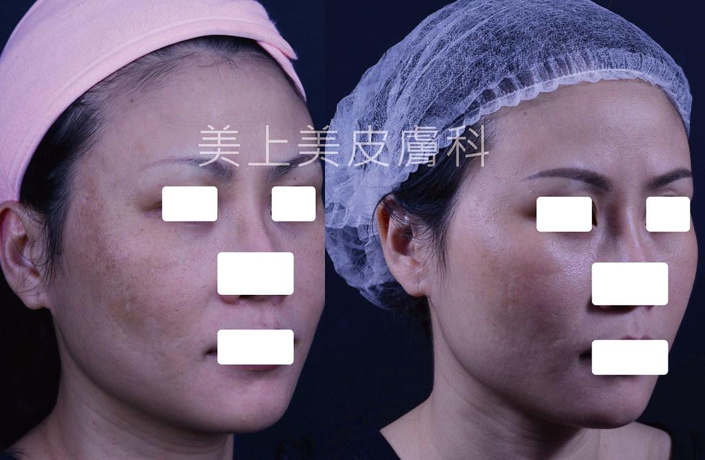 三階段煥膚是更深層的酸類換膚,對於青春痘治療、粉刺治療、皮膚老化、皮膚暗沉、毛孔縮小有更好的治療效果