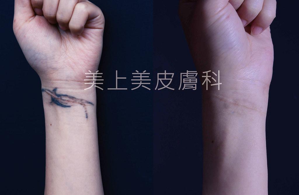 揮別過去印記,除刺青的最新科技,最新的除刺青方法,最有效的除刺青雷射機器,皮秒雷射解決您身上的所有的刺青。皮秒雷射是最不容易留下傷痕的除刺青雷射機器。