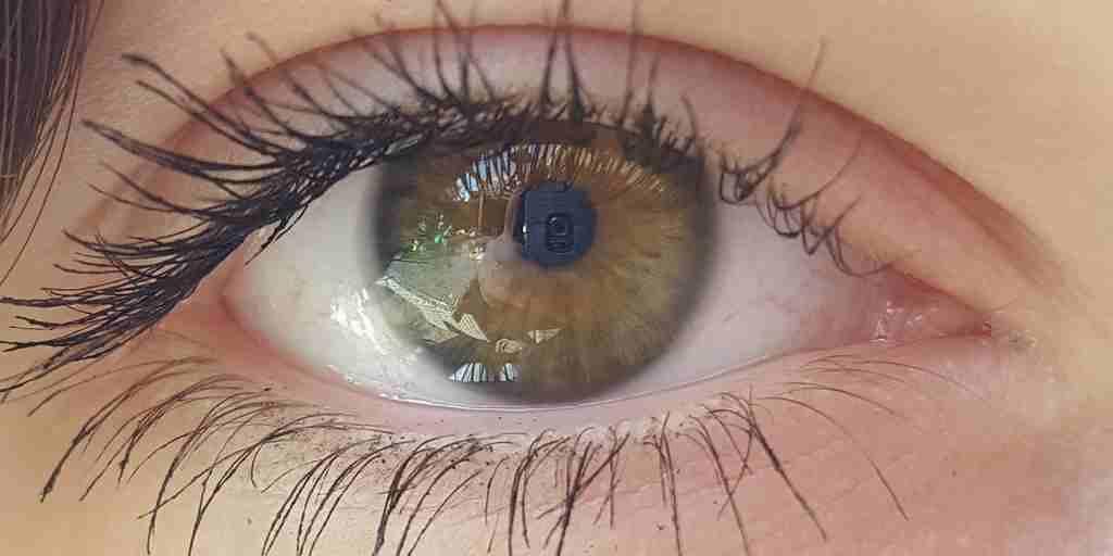 les-yeux-pour-prédire-la-maladie-Alzheimer
